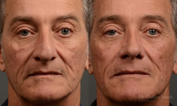 407 - Expert toronto rhinoplasty surgeon - dr. oakley smith - hump reduction, overall size reduction