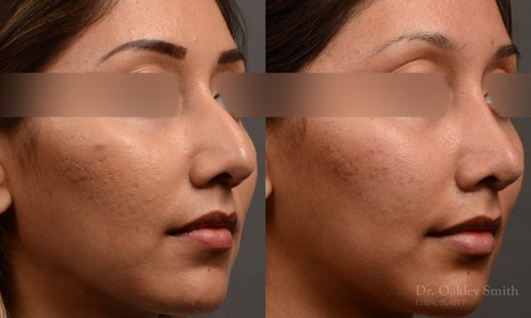 409 rhinoplasty, dr oakley smith, toronto, top surgeon, nose job