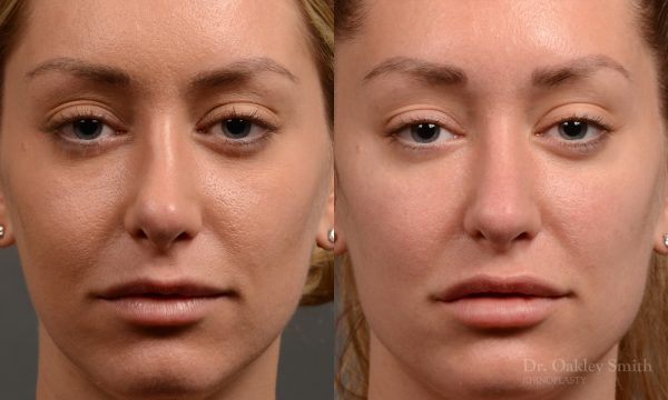 410 rhinoplasty, dr oakley smith, toronto, top surgeon, nose job
