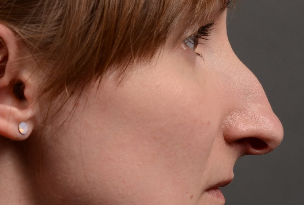 Rhinoplasty Before and after Case 412