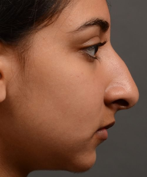 413 - expert toronto rhinoplasty surgery to remove the bulbous tip of this mans nose