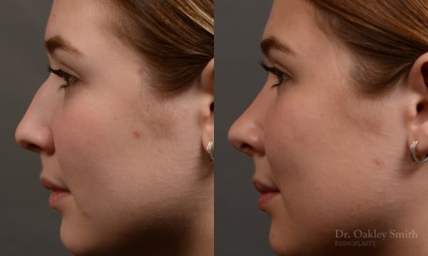 414 rhinoplasty, dr oakley smith, toronto, top surgeon, nose job