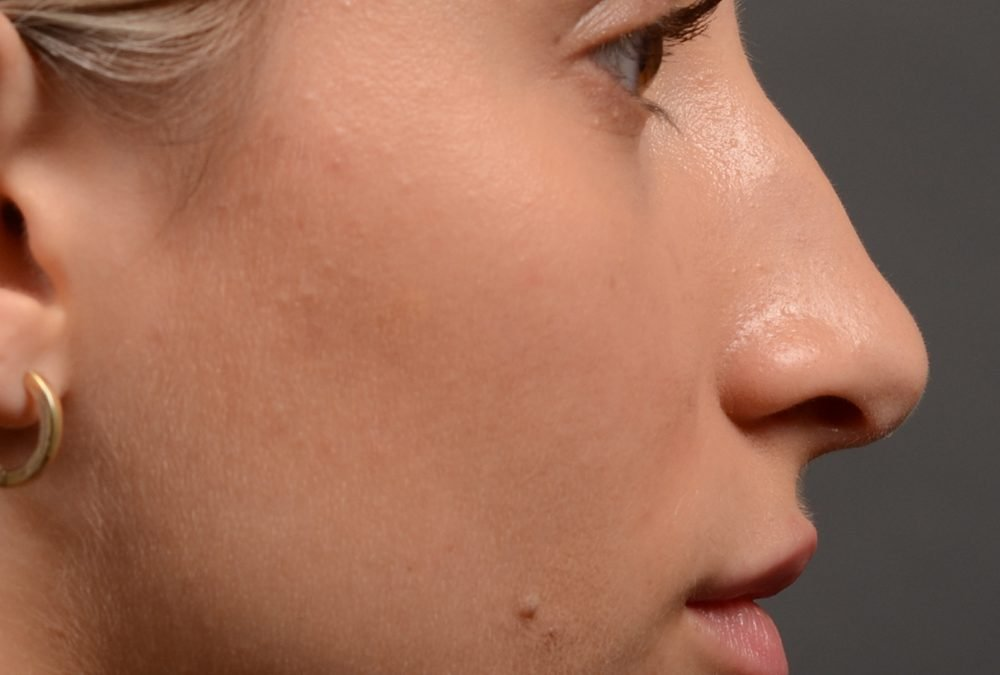 Rhinoplasty Before and After Case 415