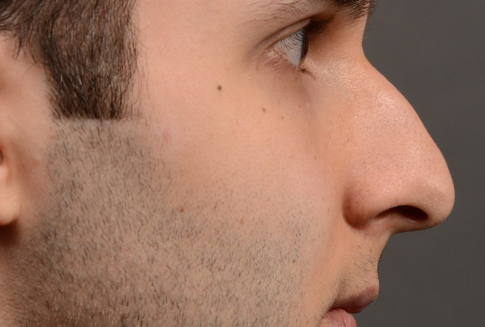 Rhinoplasty Before and After Case 420