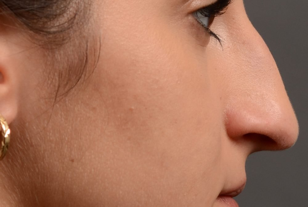 Rhinoplasty Before and After Case 422