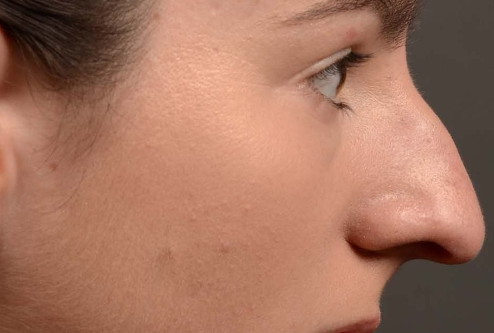 Rhinoplasty Before After Case 426